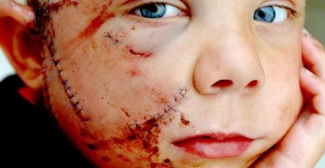 Four-year-old George Brown from Huntingdon, Cambridgeshire, recovers at home today after being mauled by a dog.